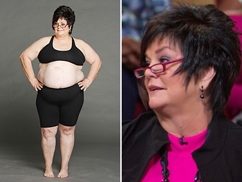 Bette Sue, before and after losing weight