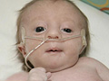 Eliot, born with Trisomy 18
