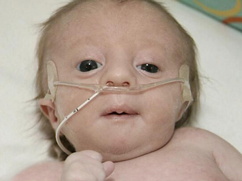 Eliot was born with Trisomy 18.