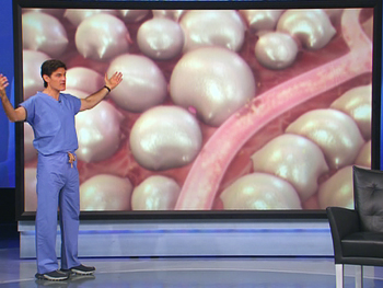 Dr. Oz shows how cellulite forms.