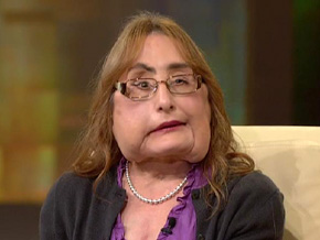 Connie Culp never expected to get a face transplant.