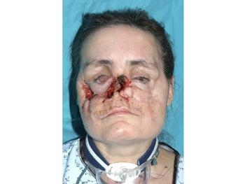 Connie Culp's face in November 2004