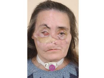 Connie Culp's face in November 2005