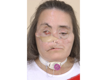 Connie Culp's face in March 2006