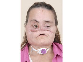 Connie Culp's face in December 2008