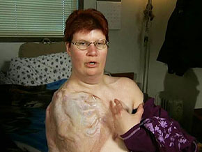The scar on Tanya's upper body reminds her that she's lucky to be alive.