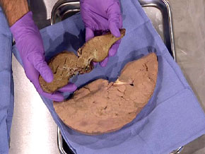 A healthy liver next to a diseased liver